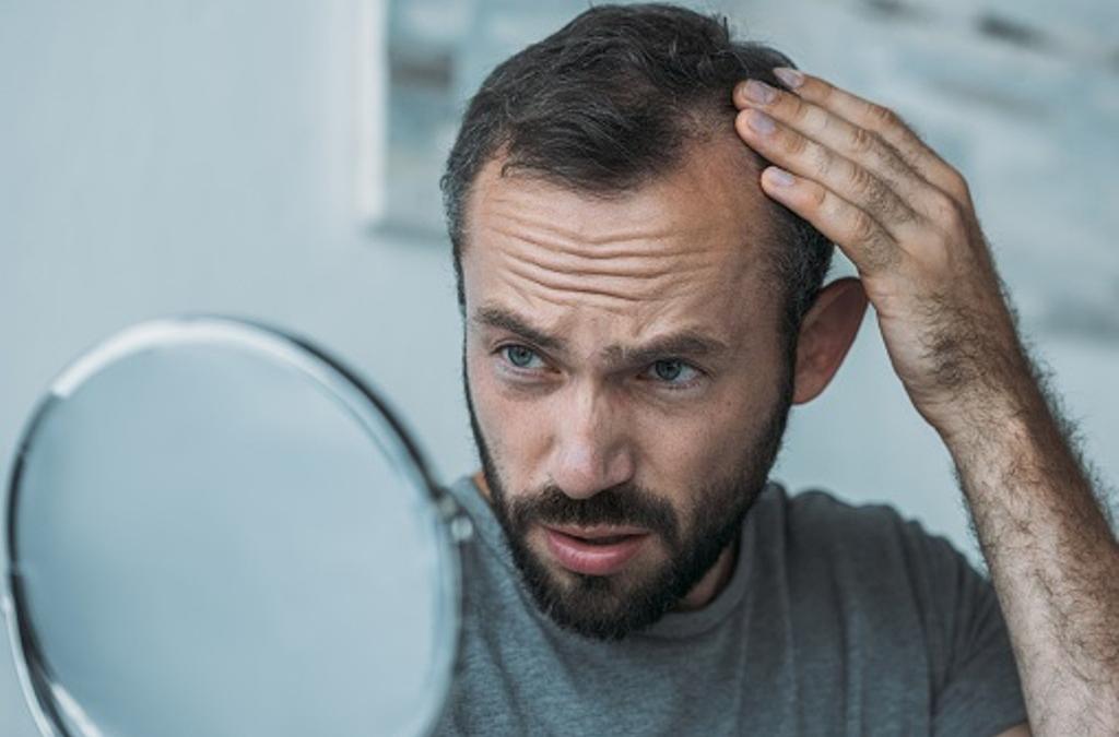 Trichotillomanie : causes, symptômes et traitement